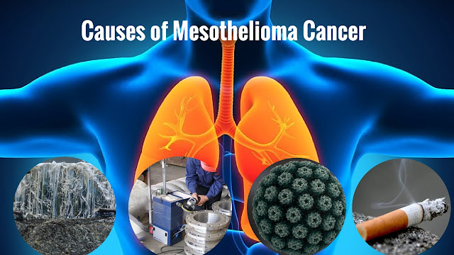 Can You Get Mesothelioma Without Asbestos Exposure
