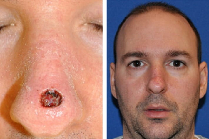Squamous Cell Skin Carcinoma Mohs Surgery