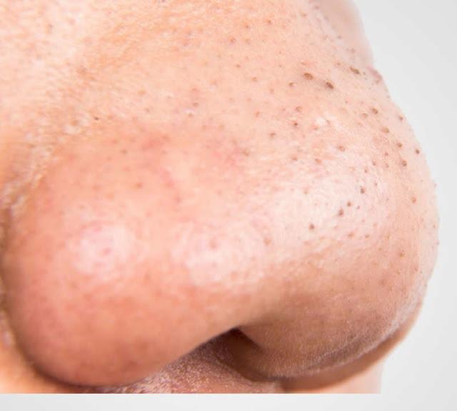 चेहरे और नाक से ब्लैकहेड्स हटाने के 18 गजब उपाय