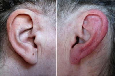 Kulak Yanmasının Nedenleri Ve Tedavisi