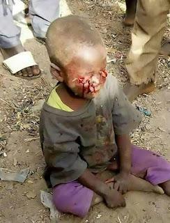seorang ibu tega mencungkil mata anaknya,akibat sang anak mengompol di tempat tidur