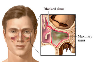 Cara Mengobati Sinusitis dengan Herbal