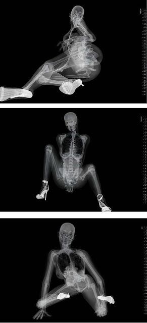 Frauen skelett