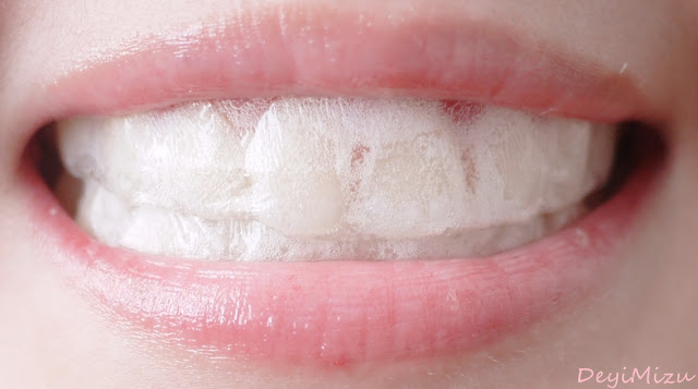 DeyiMizu: (After) Crest 3D White 2 Hour Express Whitestrips