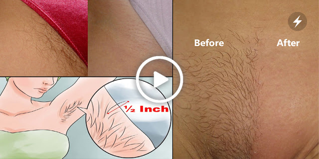 If You Want To Remove Pubic Hair Permanently Then Try This Simple Home Method
