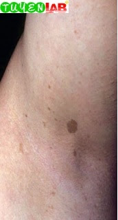 Fig. 2.2 Axillary freckling neurofbromatosis (macules).