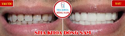 trồng răng sứ tốt nhất tphcm