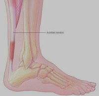 Asuhan Keperawatan Pada Pasien Achilles Tendinitis