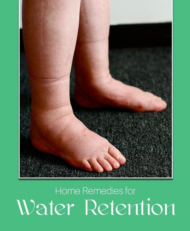 Water Retention In Legs 20