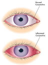 Cara Mengobati Penyakit Mata Konjungtivitis