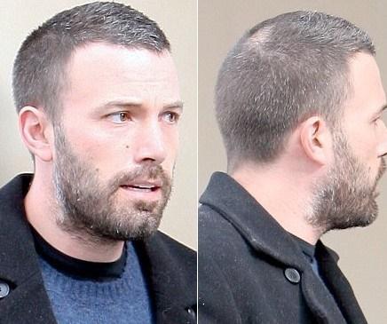 Henry cavill hair loss