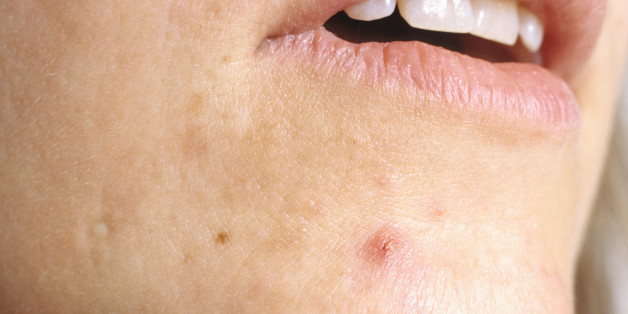 severe cystic acne