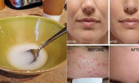 Mascarilla de bicarbonato y aceite de coco para eliminar el acné y manchas