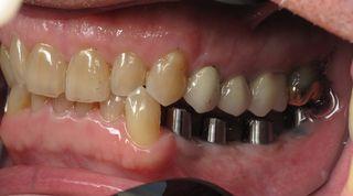 cay-ghep-rang-implant-uy-tin-nha-khoa-thuan-kieu-tphcm-2018-13