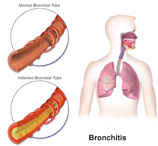 Treatment for Bronchitis