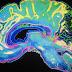 Πρωτοποριακή μελέτη αποκαλύπτει τι συμβαίνει στον εγκέφαλό σου όσο πεθαίνεις (video)