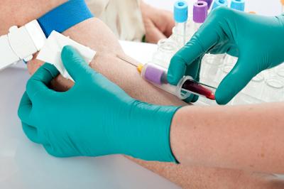 Fungsi Cek Darah Lengkap Untuk Mengetahui Penyakit Anda