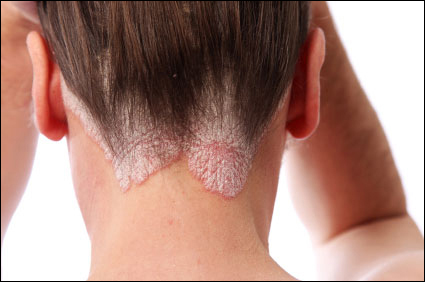 Home remedies for psoriasis, diet in psoriasis, do's, don'ts