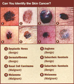 Paradise Airbrush Tanning Mobile Spray Tan Service 4 Facts On The Dangers Of Tanning Beds