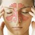 Macam-Macam Penyakit Hidung Dan Cara Pengobatannya