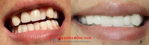 Trồng răng sứ cho 1 răng bị mất