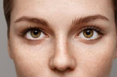 ''Remedies for conjunctivitis,home remedies for pink eye,pink eye,treatment for pink eye,home remedy for pink eye,pink eye remedies,natural remedies for pink eye,how to get rid of pink eye,conjunctivitis,