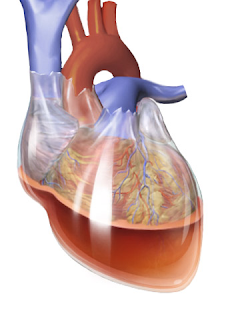 Tamponade Jantung efusi perikardial gambar picture cardiac tamponade pericardial effusion fluid cairan heart attack
