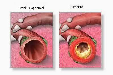 Ciri-Ciri Penyakit Bronchitis Pada Manusia