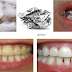 You Can Whiten Your Teeth With Baking Soda By Simply Following This 4 Methods!