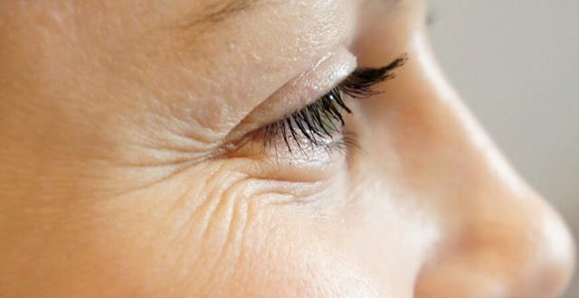 منع ظهور التجاعيد ,ظهور التجاعيد ,التجاعيد المبكرة ,الشيخوخة المبكرة ,اعراض الشيخوخة عند المراة, الشيخوخة المبكرة عند المرأة