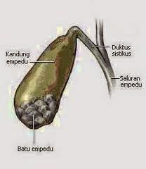 Obat untuk Menghancurkan Batu Ginjal dan Batu Empedu