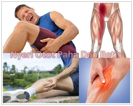 Pengobatan Herbal Nyeri Otot Paha Dan Betis Secara Alami Ampuh