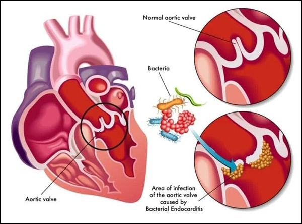 Infective Endocarditis, Bacterial Endocarditis