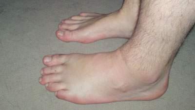 kaki bengkak, aboh, beri-beri