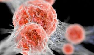 manfaat daun kenikir untuk penyakit kanker