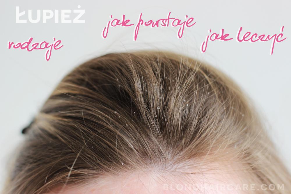 wypadanie włosów przez łupież