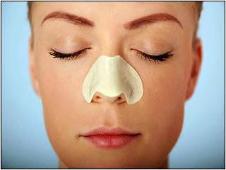 cara menghilangkan komedo di hidung