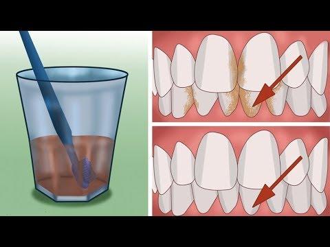 طريقة إزالة الرواسب البكتيرية من داخل الأسنان بطريقة سهلة وغير مكلفة دون الذهاب الى طبيب الأسنان!