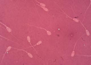 ESPERMATOZOIDES-INFERTILIDAD