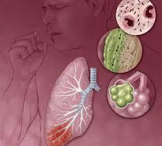 Cara Mengobati Penyakit ISPA