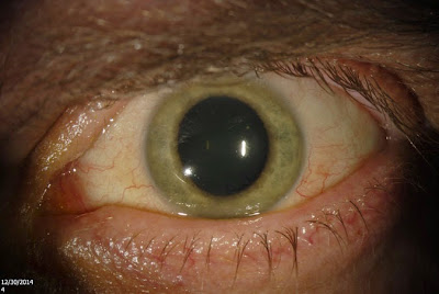 ebola inside us doctors eyes