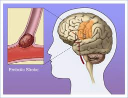 embolus-signs-symptoms-treatment-image-reload