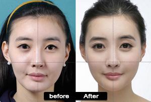 Facial Symmetry Surgery 69