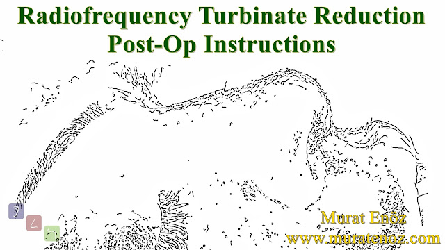 Radiofrequency Turbinate Reduction Post-Op Instructions - Post-Operative Instruction For Radiofrequency Turbinate Reduction - Post-operative Instructions for Turbinate Reduction - Postoperative Instructions for Turbinate Radiofrequency