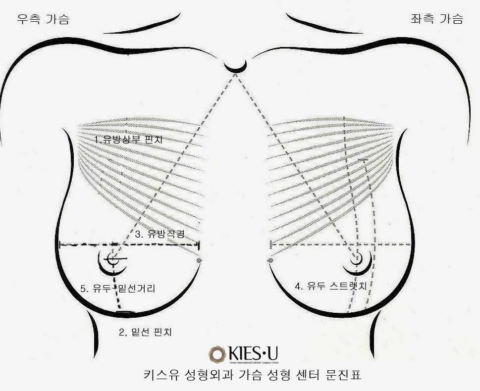Dr. Lee Breast augmentation Korea: How big should my