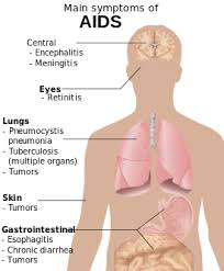 AIDS http://www.udan.name