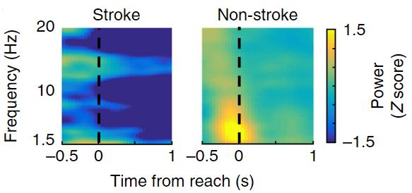 図:脳卒中患者の皮質 低周波活動
