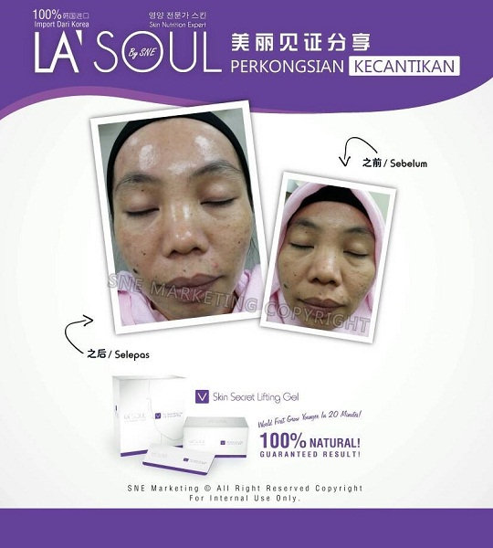 testimoni la' soul lifting gel 38