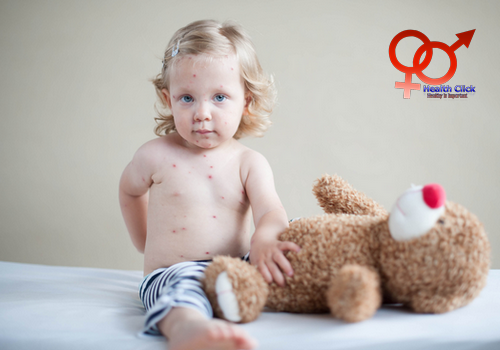 chickenpox in children, health insight, life insurance