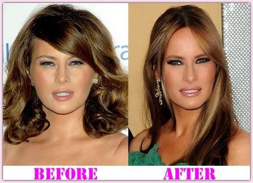 Nicki Minajoe: Melania Trump Plastic Surgery Before & After